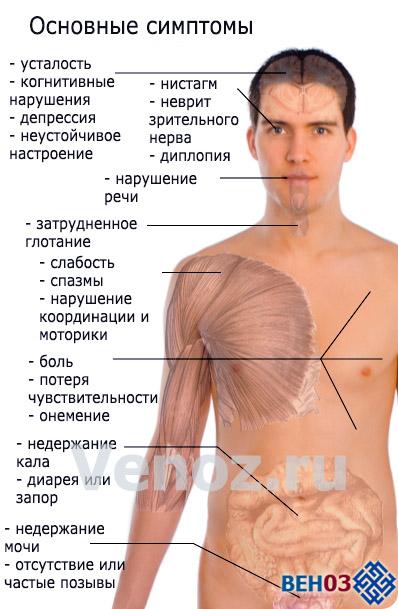 Рассеянный склероз: симптомы и проявления