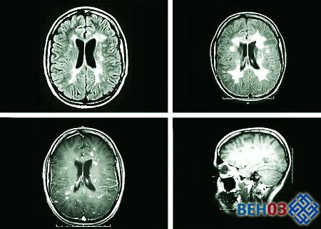 Рассеянный склероз: лечение и прогноз