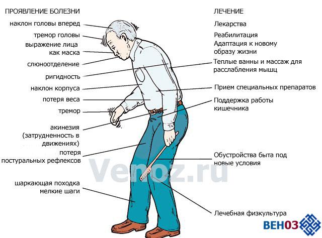 simptomi-bolezni-parkinsona4