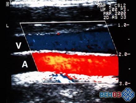 Один из видов УЗИ сосудов ног: цветовое доплеровское картирование
