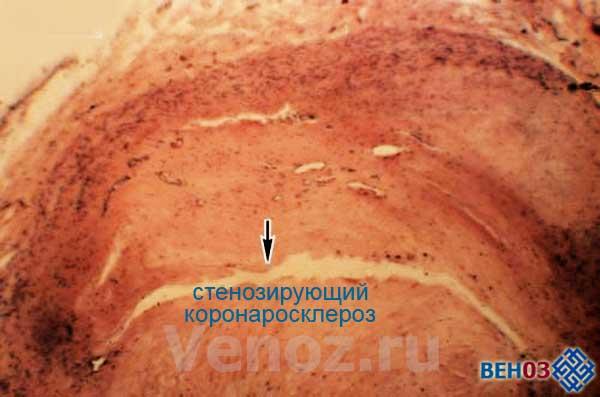 ateroskleroz-aorti4