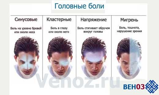 промойте что может помочь от сильной головной боли соглашение
