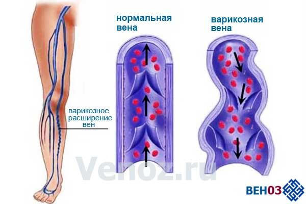 Лечение варикоза в нижнем тагиле