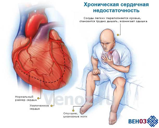 Хроническая сердечная недостаточность: симптомы и основые признаки болезни