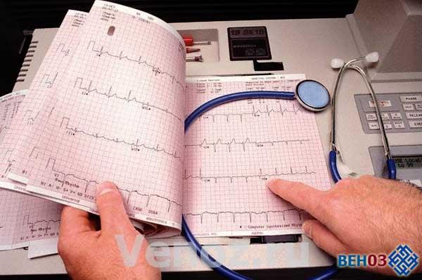 Сердечная недостаточность: симптомы, диагностка и лечение
