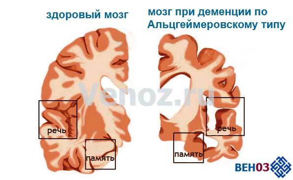Сосудистая деменция и болезнь Альцгеймера трудноразделимы по симптоматике