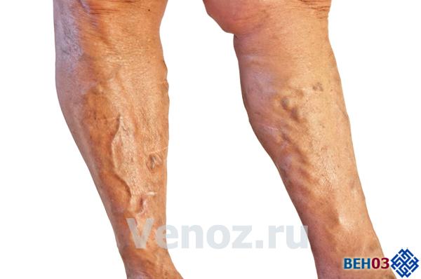 Симптомы варикоза ног при прогрессировании заболевания
