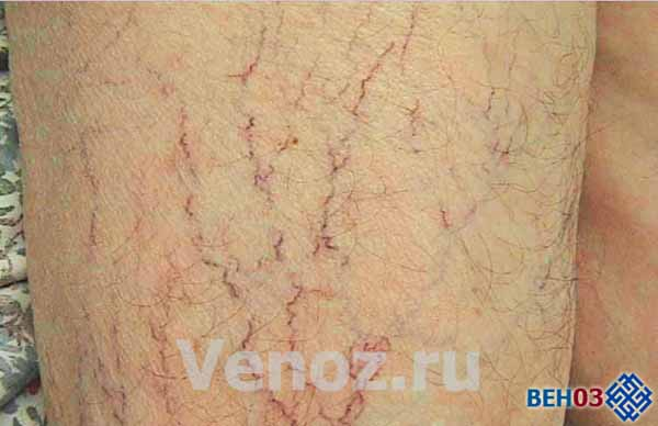 Как проходит операция при удаление варикозных вен