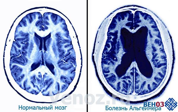 Альцгеймера болезнь: снимки мозга