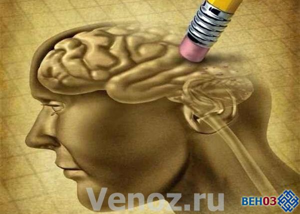 Альцгеймера болезнь: причины возникновения