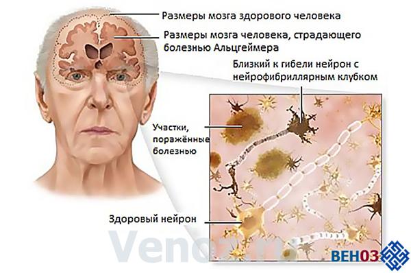 Альцгеймера болезнь: изменения в коре головного мозга