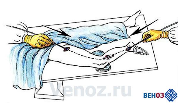 Флебэктомия может быть дополнена лазерной облитерацией
