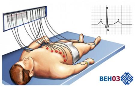 Кардиограмма сердца: процесс проведения ЭКГ
