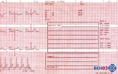Как прочитать кардиограмму сердца самостоятельно у ребенка