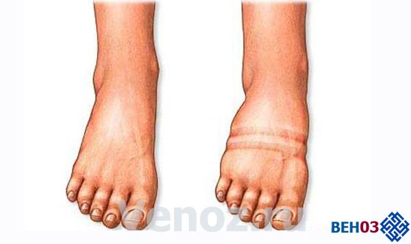 Отеки ног: причины возникновения