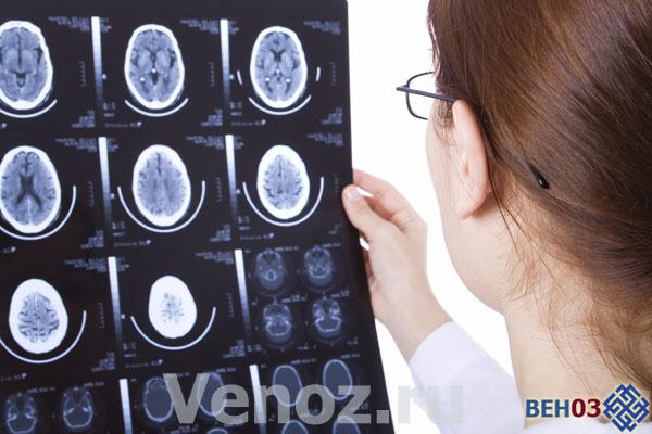 Рассеянный склероз что это: симптомы заболевания