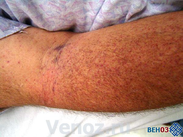 Тромбоцитопения лечение: симптомы