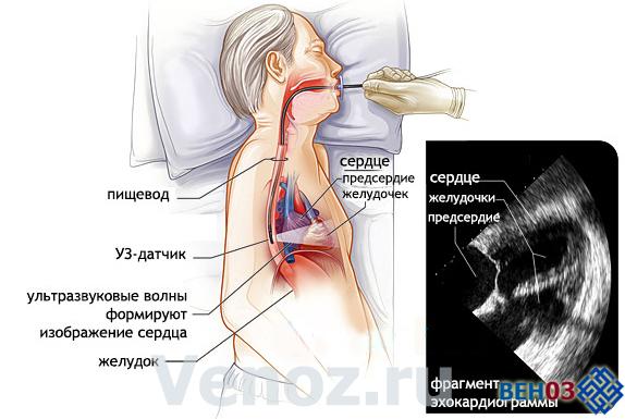 Эхокардиография сердца: что это такое, ЭХО кардиограмма ...