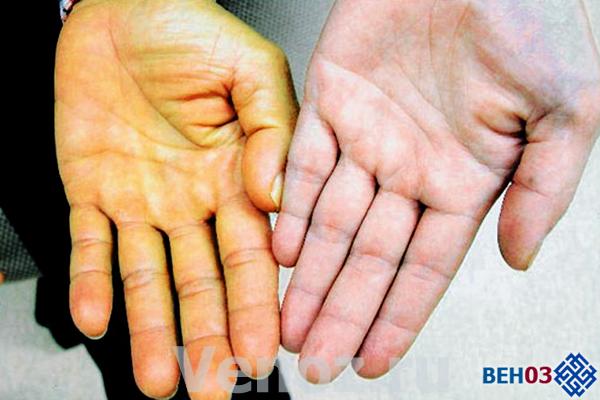 Гемолитическая анемия: что это такое, симптомы у детей, лечение