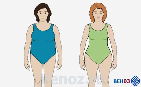Лечение ожирения по гиноидныму и андроидныму типу