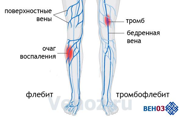 Флебит нижних конечностей: симптомы