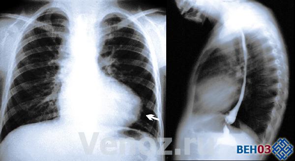 Тетрада фалло: фото снимка (рентген)