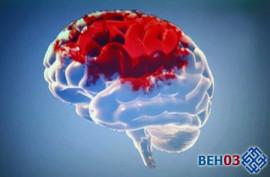 Инфаркт головного мозга: что это такое?