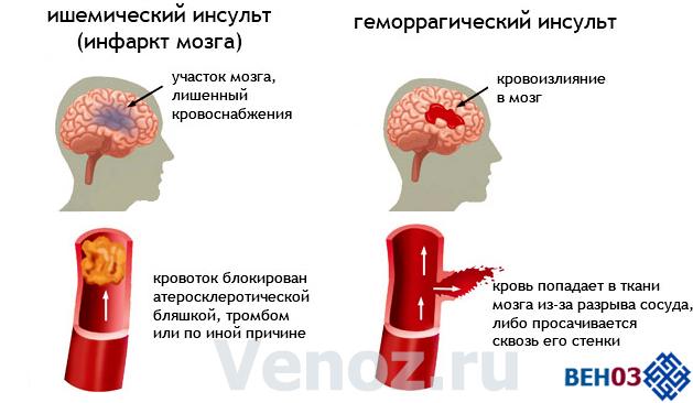 Инфаркт мозга: симптомы и последствия