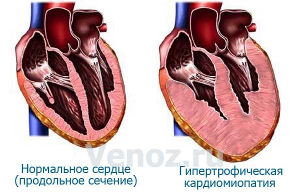 kardiomiopatiya2