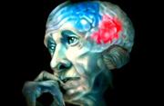 Причины и механизмы развития болезни Альцгеймера