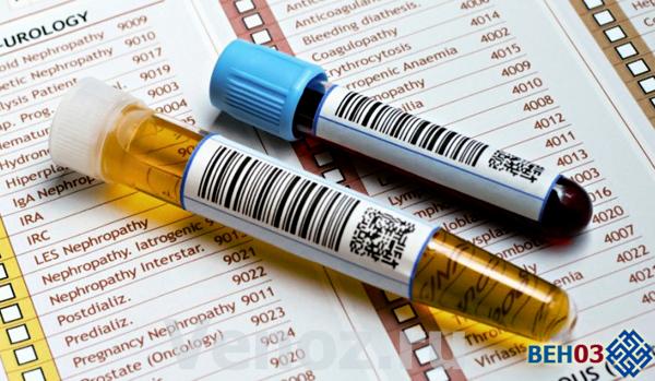 К образованию мочевой кислоты приводит недостаточная активность ксантиноксидаза.