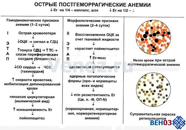 Анемия острая постгеморрагическая (характерные признаки)