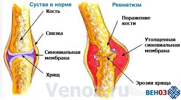 Ревматизм ног в большинстве случаев сопровождается симптомами поражений сердца или отклонениями в нервной системе.