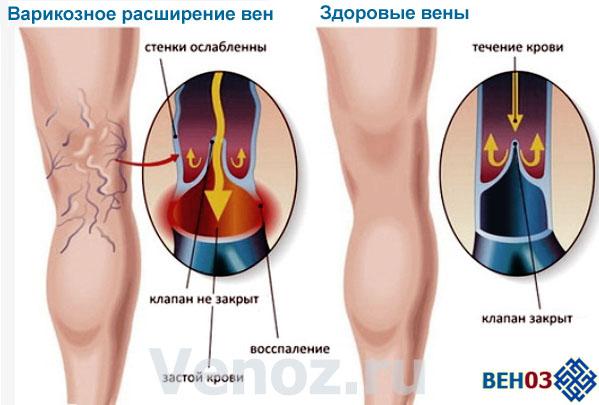 К затруднению обратного оттока венозной крови зачастую приводит малоподвижный образ жизни и отсутствие физической нагрузки.
