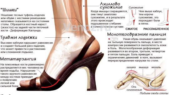 Ношение неудобной обуви на высоком каблуке может привести к появлению синдрома венозной недостаточности.