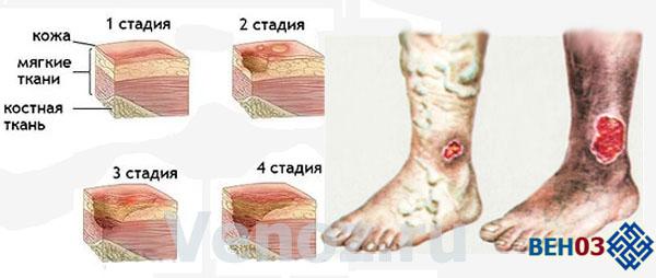 Венозная недостаточность нижних конечностей: симптомы, лечение ...